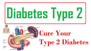 Breakthrough for Type 2 Diabetes Sufferers