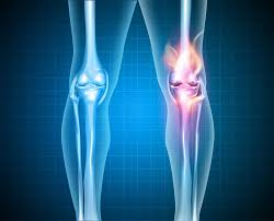 Joint Replacements Lasting LongerThan Expected