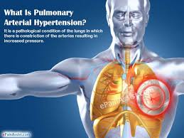 Genetic Link in Pulmonary Arterial Hypertension